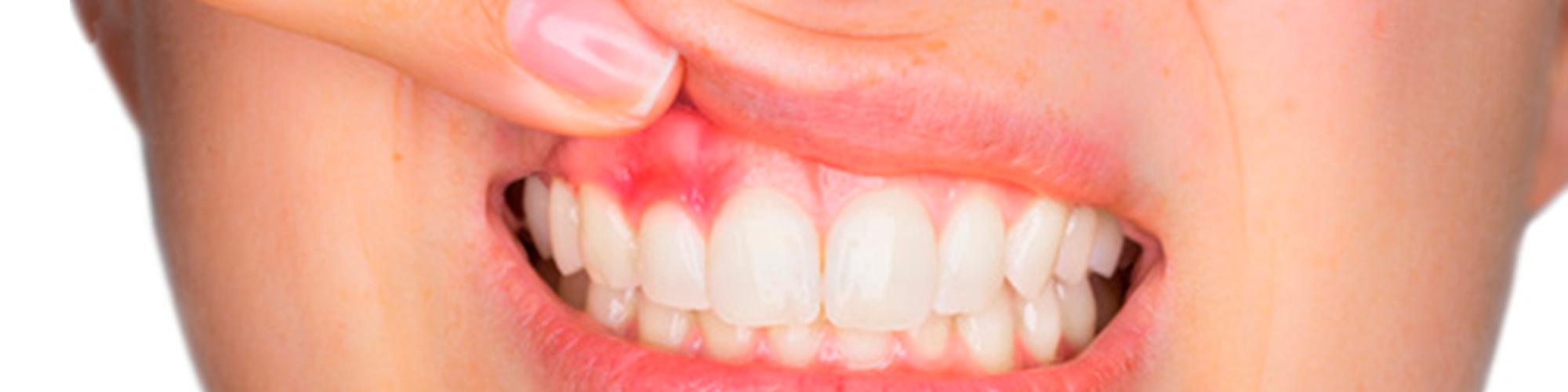 Problemas de gingivitis