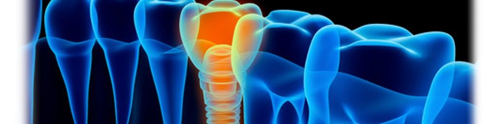 Implantes carga inmediata